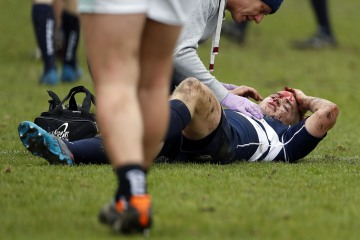 Angus McCance of Oxford head injury during the RCMA Varsity Rugby League game between Cambridge University and Oxford University at the HAC Ground, Moorgate, London on Fri Mar 9, 2018